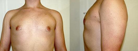 after male breast reduction