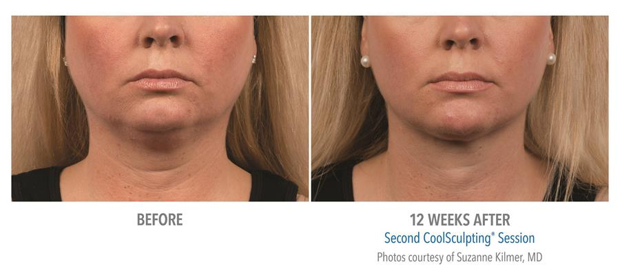 before and twelve weeks after coolsculpting session
