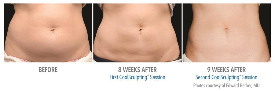 before and after first and second coolsculpting session