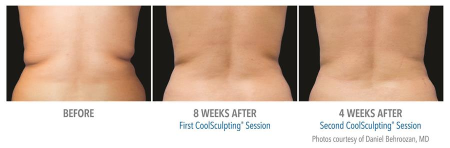 before and after first two coolsculpting sesions