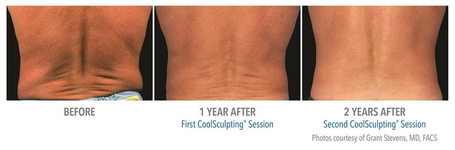 before and after first two coolsculpting sessions