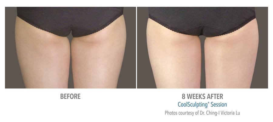 before and eight weeks after coolsculpting session